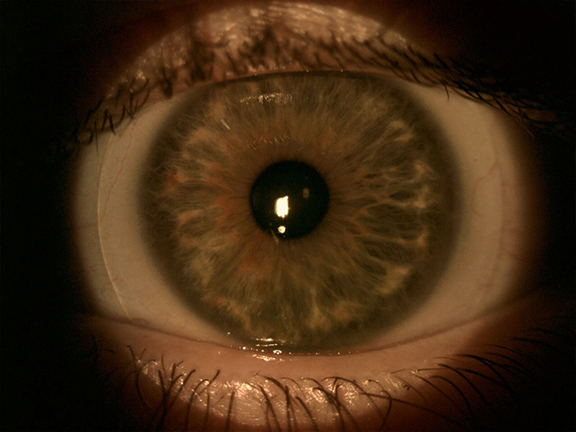 close up of an eye with a scleral contact lens